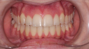Candace Intraoral After