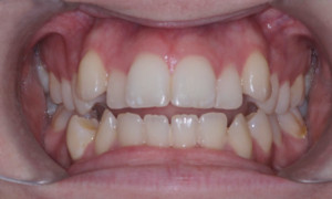 Candace Intraoral Before